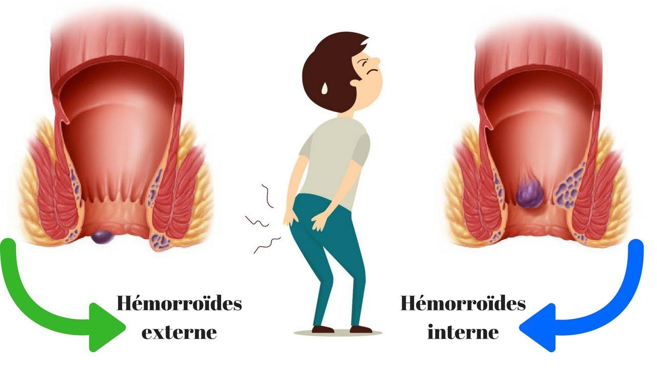 que faire contre les hemorroides