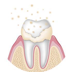 plaque-dentaire-site