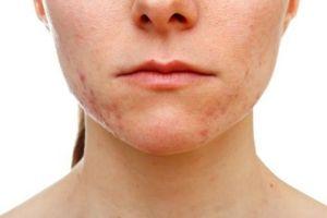 acne-causes